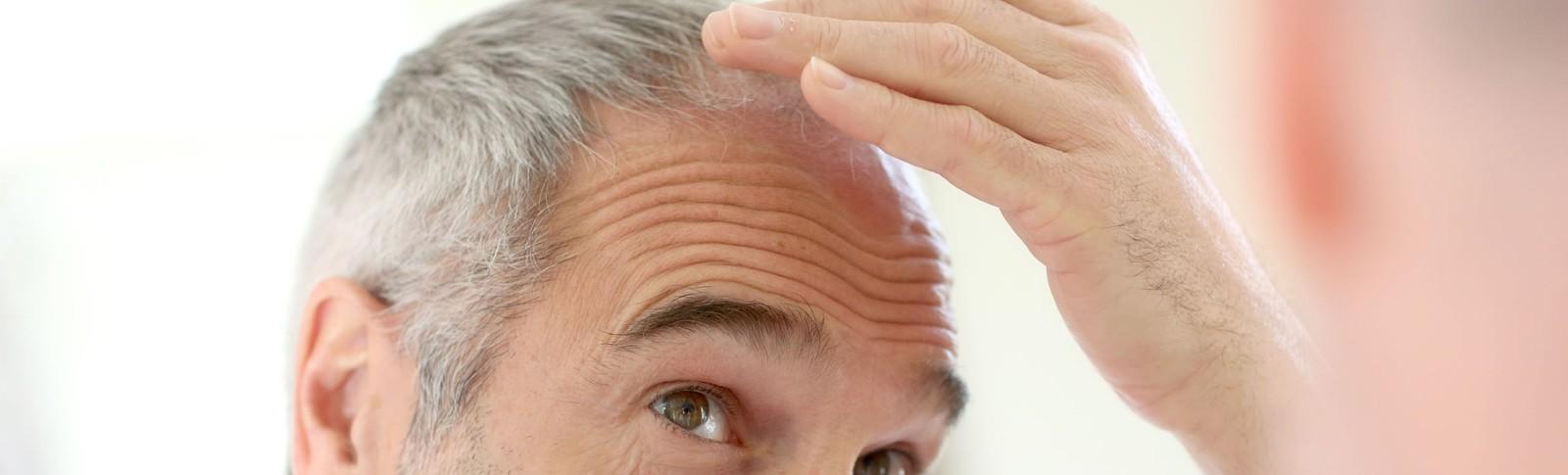 Mann betrachtet seinen Kopf nach einer Haartransplantation bei Glatze
